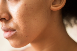 pele espinha (1 de 2)